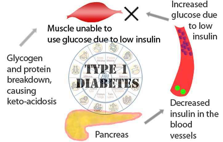 Type-1 Diabetes In Medical Astrology - Horoscope/ Kundli Analysis